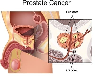 dessin cancer prostate